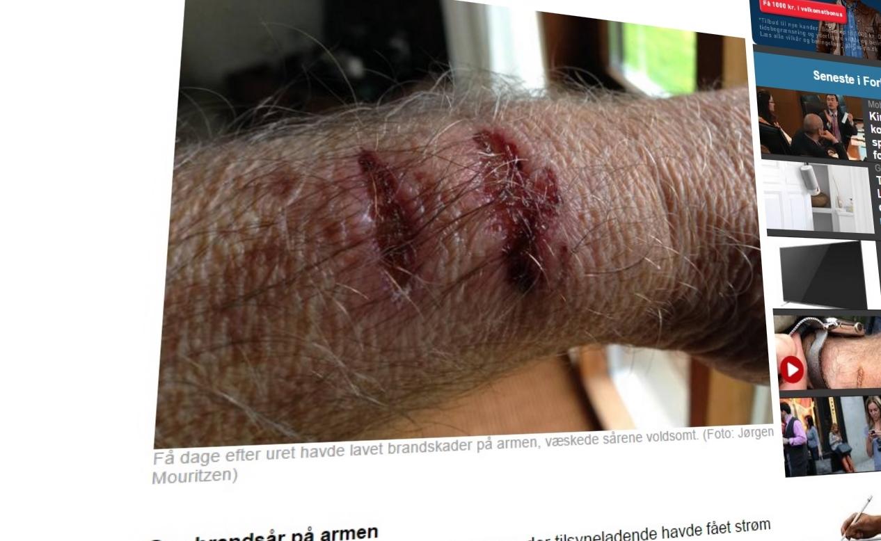 Klokka skal ha gjort stor skade på dansken sin arm. Apple vil ikke si noe som helst om hva som kan ha skjedd.