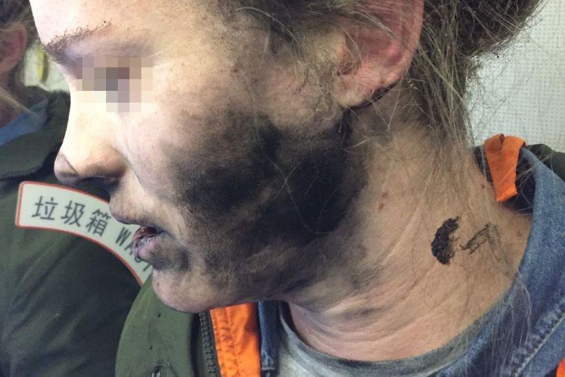 Slik så kvinnen ut etter å ha blitt brent av sine hodetelefoner.